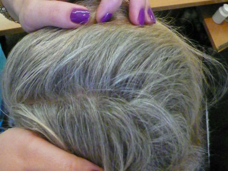 bald after l 1
